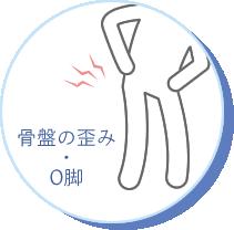 骨盤の歪み・O脚